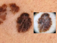 Superficial spreading melanoma