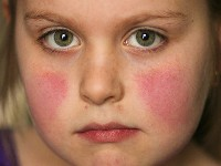 Slapped cheeks bij erythema infectiosum