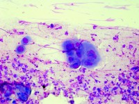 Tzanck test met multinucleate giant cells